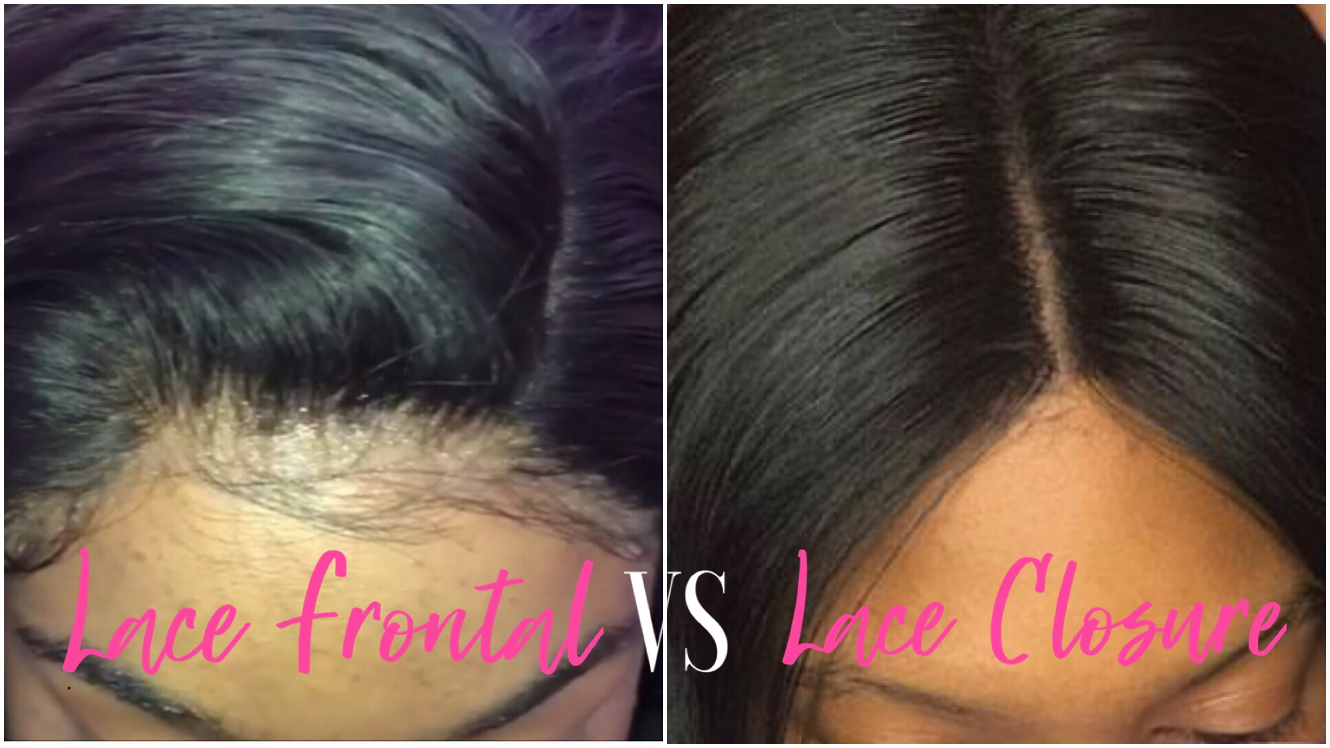 What s The Difference Between Lace Frontal   Lace Closure – http ... 4569a10ffc75